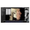 Modul 3D Ceph - Software OnDemand3D