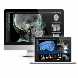 OnDemand3D - software radiologie dentara